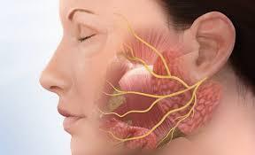 За ухом где челюсть болит чем лечить. Болит челюсть. Боли под челюстью, боль отдает в ухо, воспаленные челюстные лимфоузлы, боли при открывании рта, щелкает челюсть. Что делать при этих симптомах